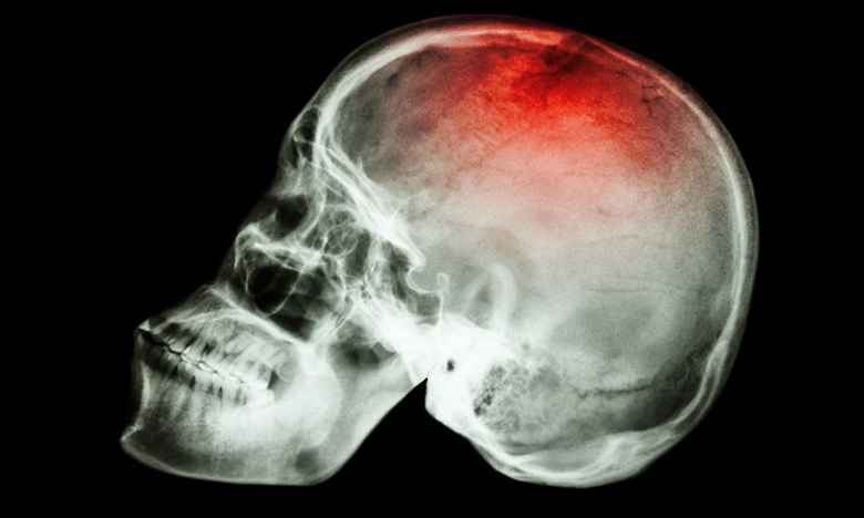 agoura hills traumatic brain injury attorneys