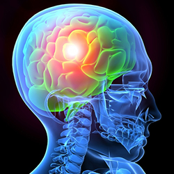 ventura county traumatic brain injury attorneys